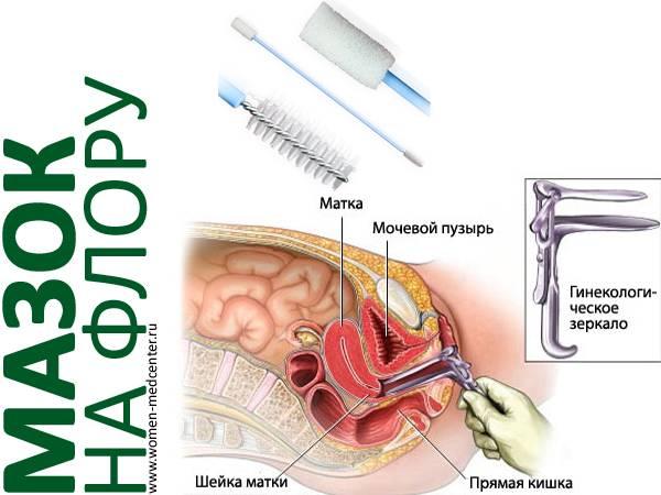 Мазок на гонорею: диагностика, подготовка к взятию анализов, лечение, расшифровка результатов