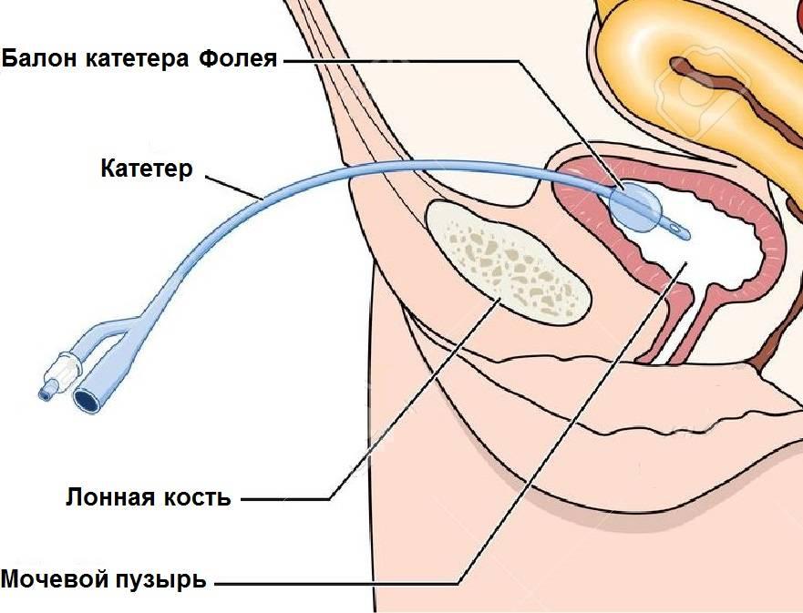 Цистостома мочевого пузыря у мужчин и женщин: показания, установка, уход