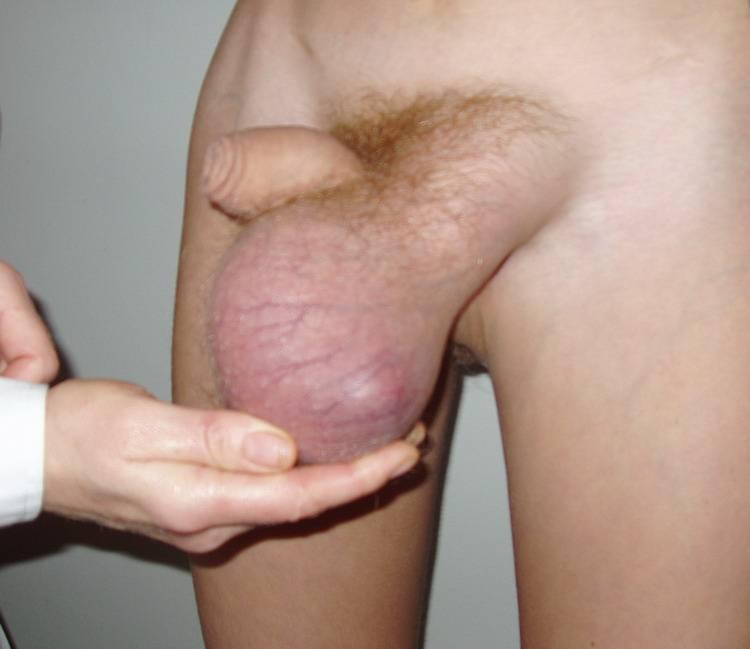 Причина боли в яичках у мужчин