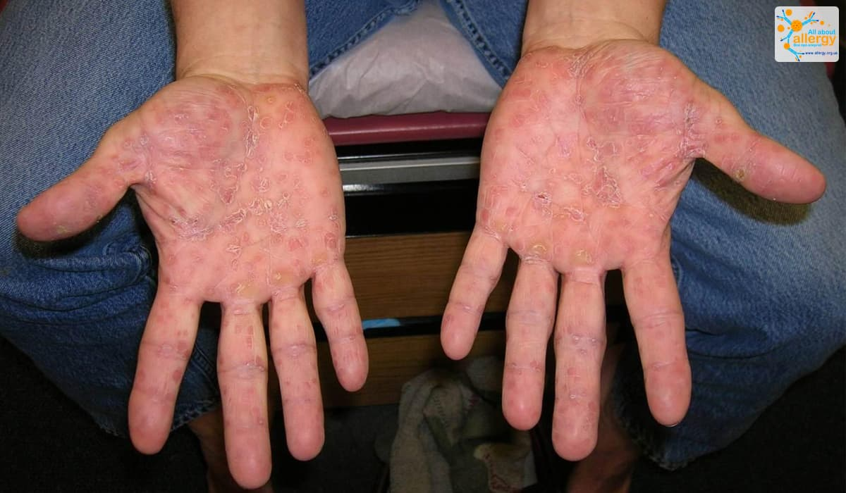 Водянистые прыщи на теле: причины, что делать, если чешутся, лечение в домашних условиях