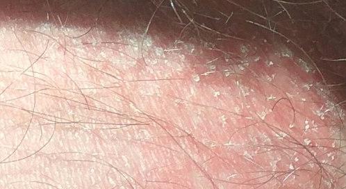 Шелушение кожи на яичках
