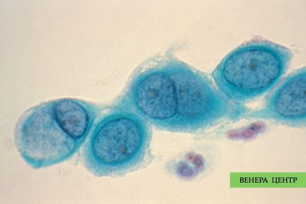 Хламидиоз у мужчин: симптомы и методы лечения препаратами