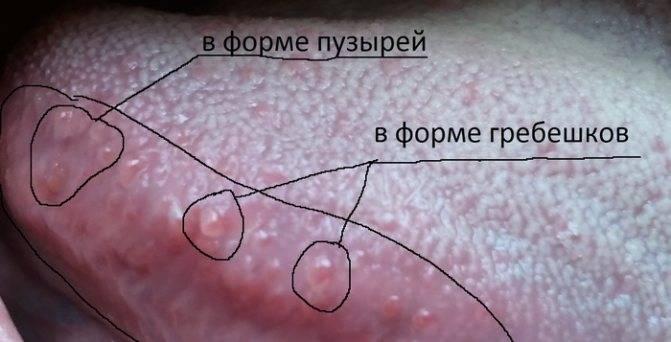 Папиллома в горле: причины, симптомы, диагностика, методы лечения