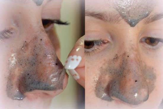 Народные средства и маски от черных точек на лице