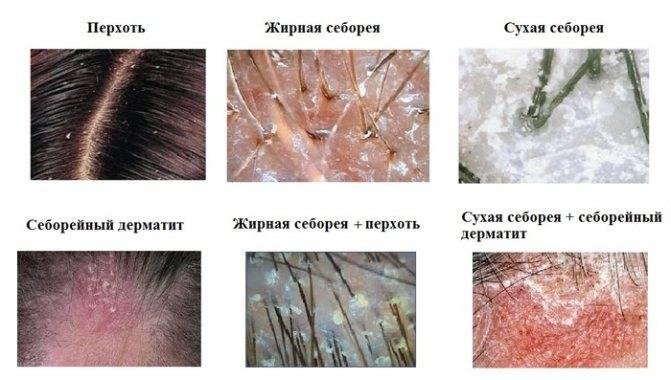 Себорея кожи головы: как избавиться от перхоти