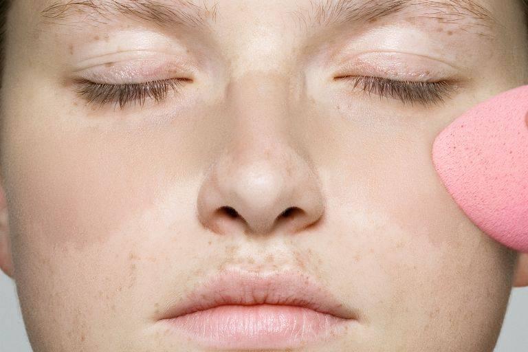 Пигментация на лице. причины и лечение в домашних условиях. кремы, мази, народные средства, маски, лазерное удаление