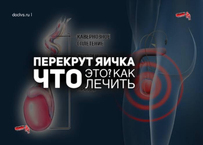 Послеоперационный период (перекрут гидатиды яичка)