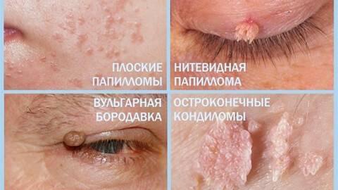 Признаки вируса папилломы