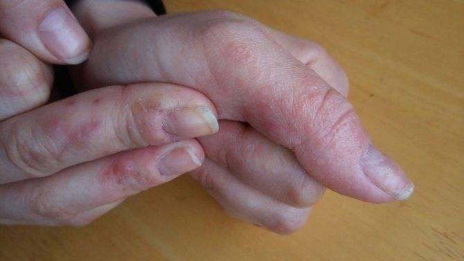 Мелкие прыщики на руках выше локтя причины. прыщи на руках от плеча до локтя: причины возникновения и особенности терапии. причины образования прыщей при фолликулярном гиперкератозе