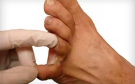 Мозоль между пальцами ног: лечение и фото. особенности избавления на мизинце
