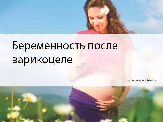 Беременность при варикоцеле