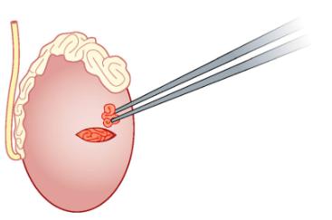 Биопсия яичка / придатка яичка / семенного канатика