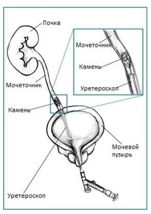 Особенности дробления камней в почках ультразвуком: проведение процедуры