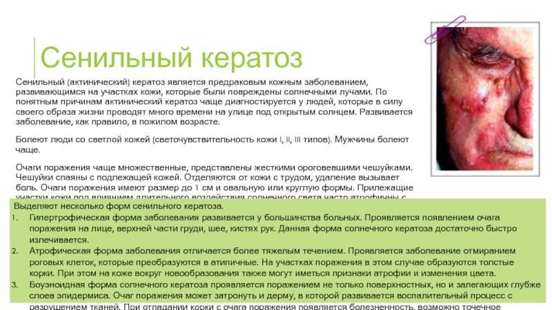 Гигантская кондилома бушке-левенштейна: причины, симптомы, диагностика, лечение