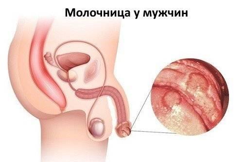 Кандидоз у мужчин. причины, симптомы и признаки, лечение кандидоза.