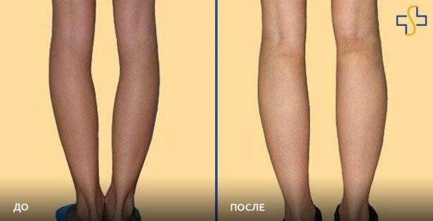 Что такое липофилинг полового члена, других интимных зон, а также кистей рук? особенности процедуры