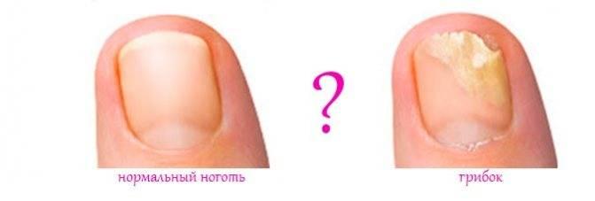 Как выглядит грибок на пальцах и как его лечить
