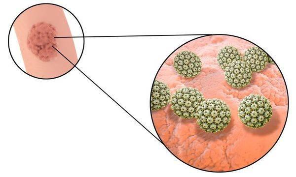 Папиллома вирусное заболевание лечение