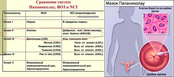 Симптомы, лечение и профилактика вируса папилломы человека у женщин