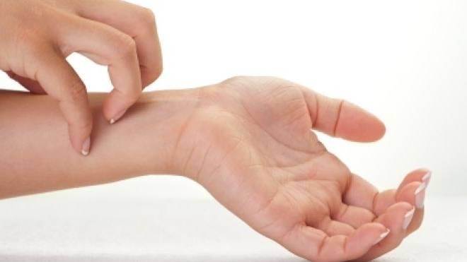 Прыщи на руках: причины появления
