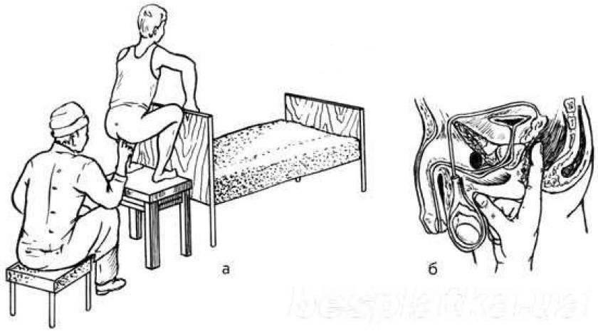 Использование массажа при простатите в составе комплексной терапии