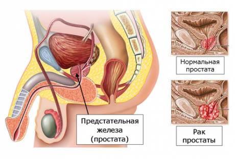 Продолжительность жизни при разных стадиях и способах терапии рака простаты
