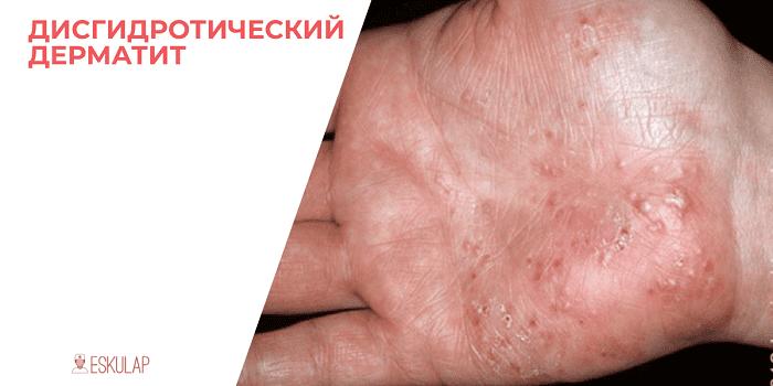 Лечение аллергического дерматита у взрослых