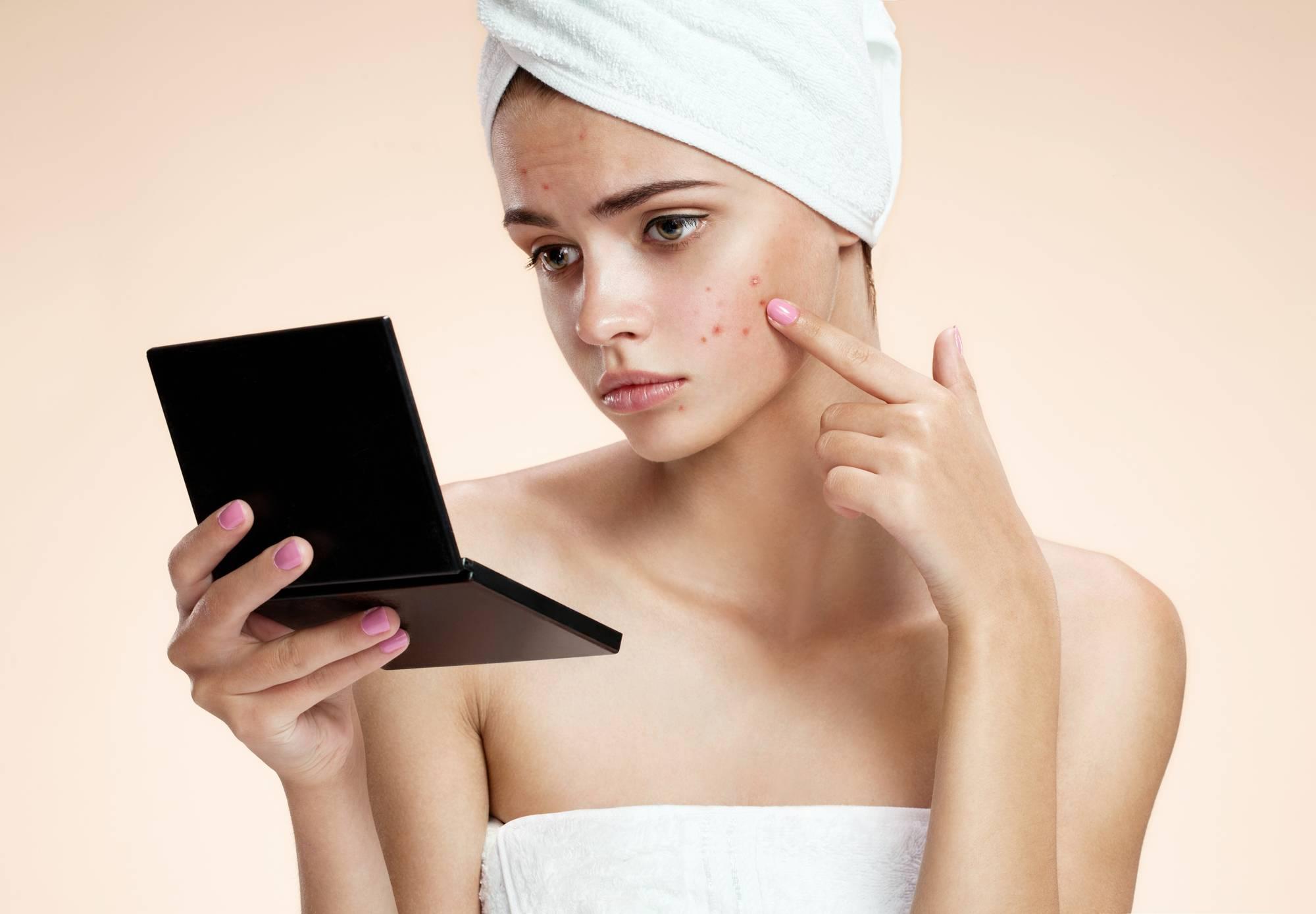 Прыщи у подростков: причины, варианты лечения и маскировки. современные препараты и народные средства (видео + 120 фото)