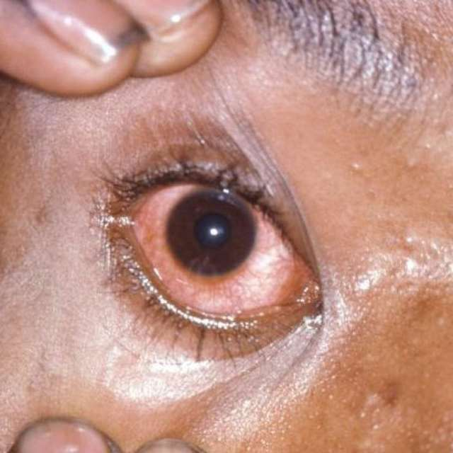 Гонорея. причины, формы, симптомы, признаки и диагностика гонореи