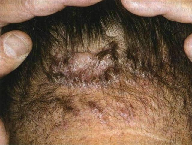 Фолликулит волосистой части головы: симптомы, лечение