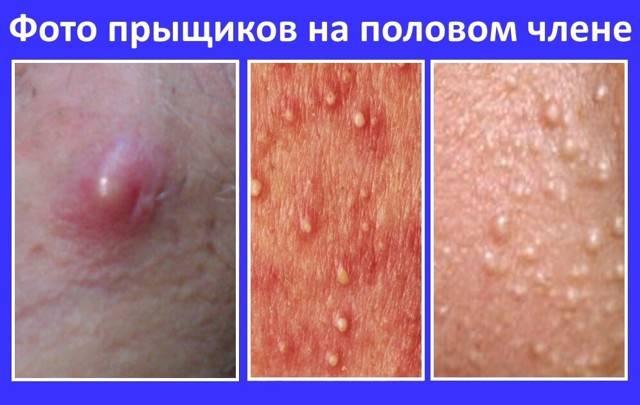 Уплотнение на половом члене: причины, возможные заболевания и лечение