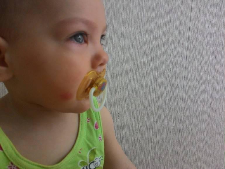 Сыпь у ребенка: аллергия, инфекция или укусы насекомых? 10 самых частых причин
