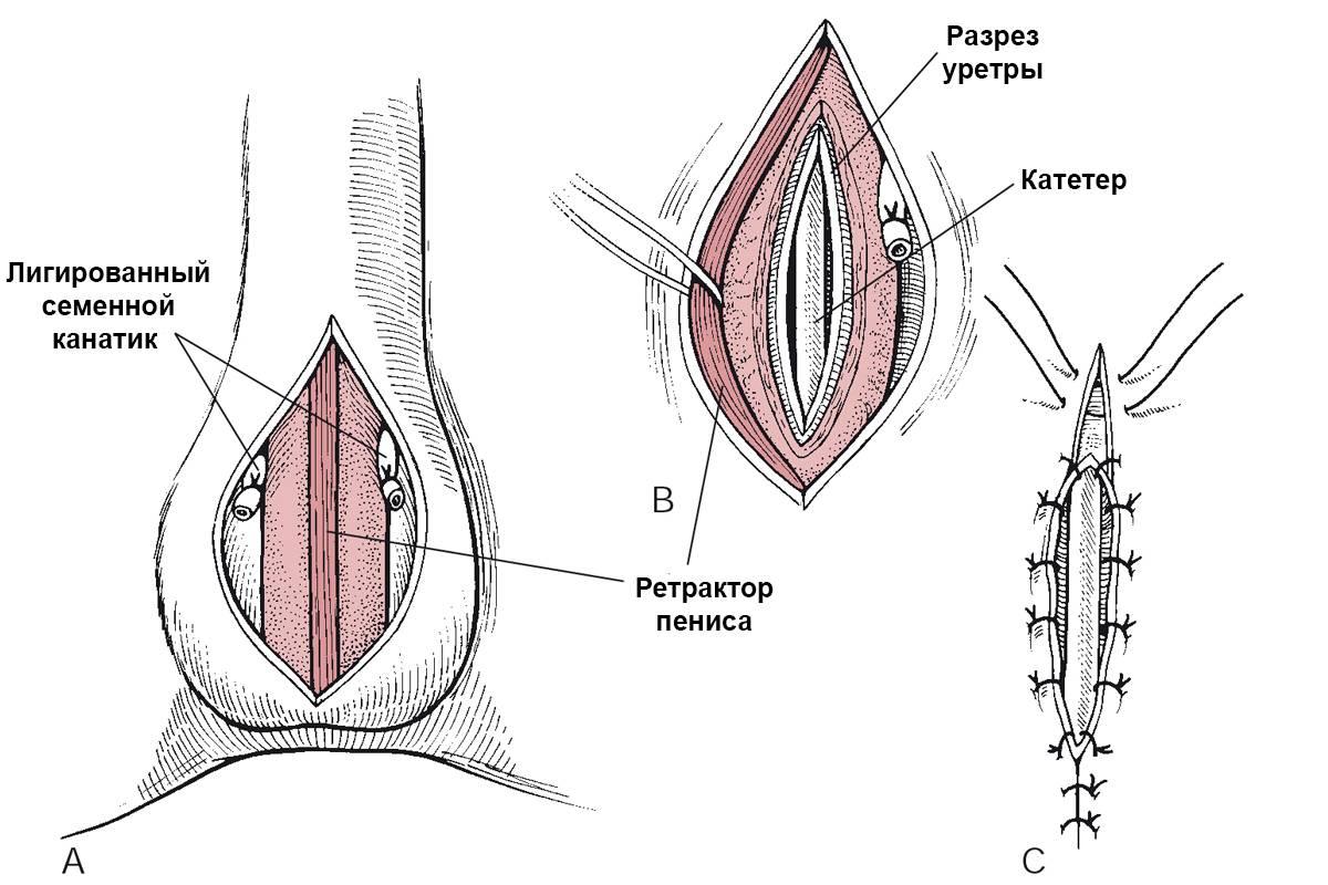 Удаление яичек у мужчин: показания, виды операций, реабилитация и последствия