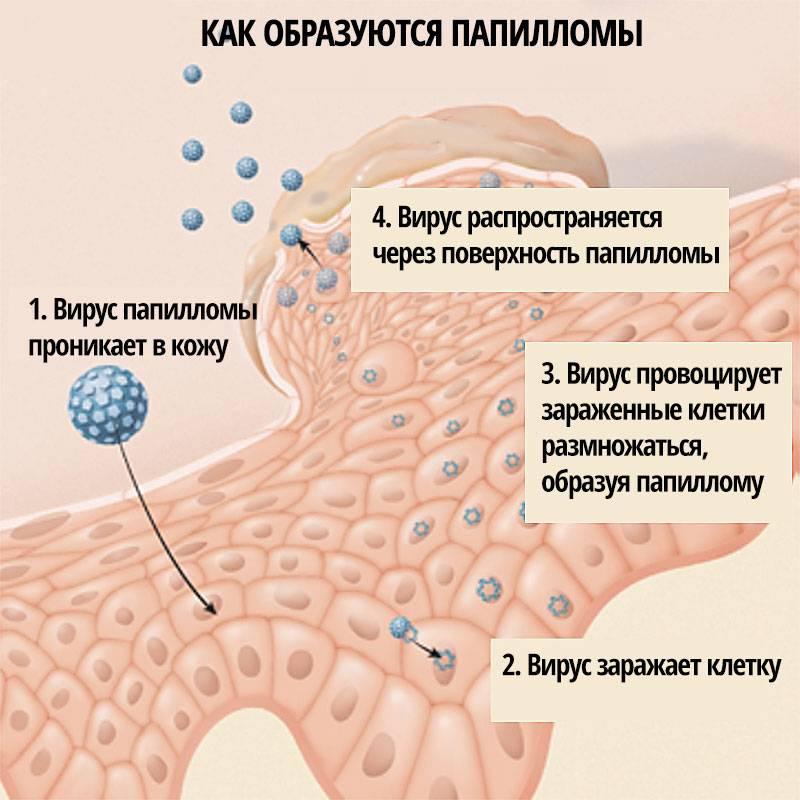 Впч среднего онкогенного риска