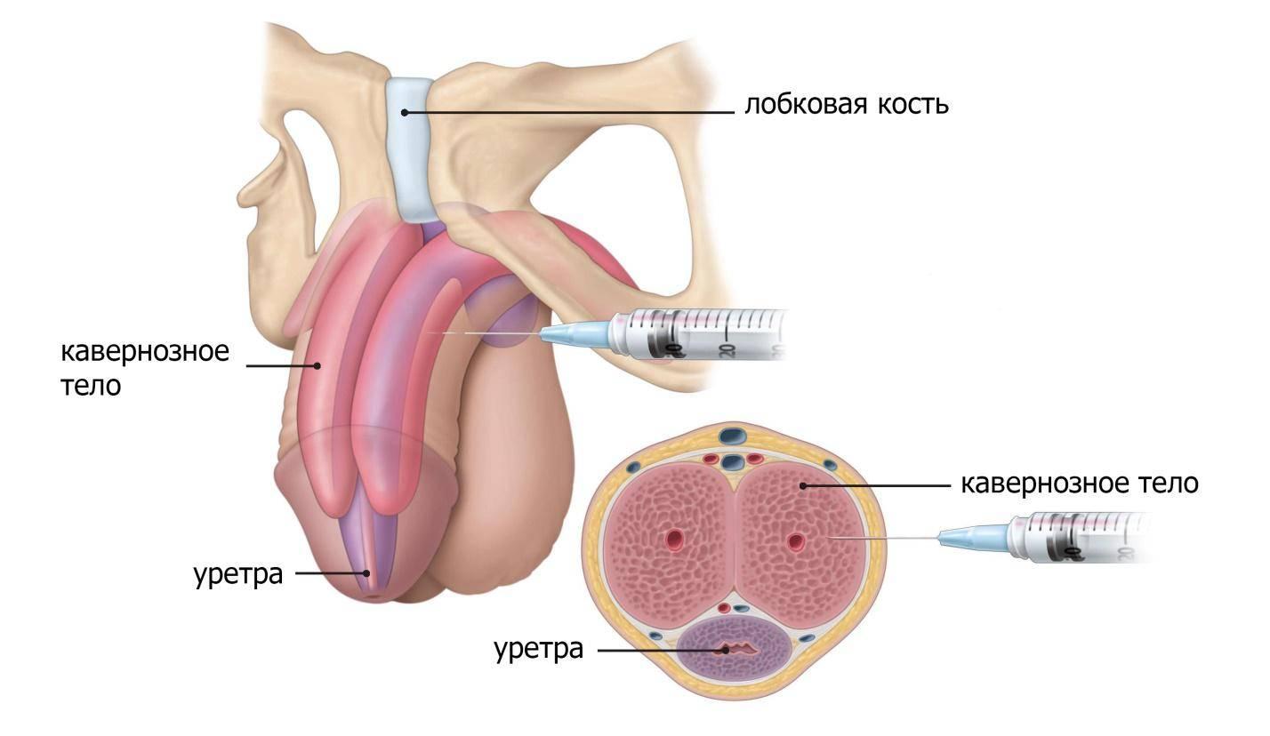 Мазь от гематомы на половом члене