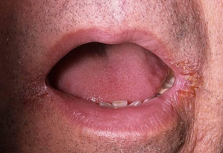 Что делать, если появились заеды в уголках рта: возможные причины и лечение у взрослых