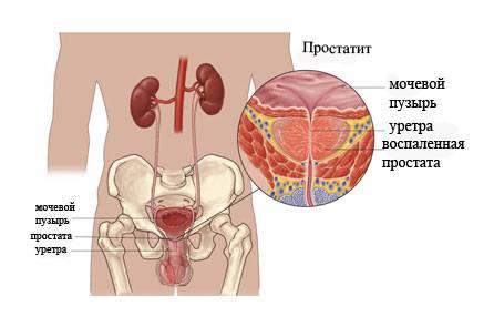 Первые признаки простатита у мужчин и способы его лечения
