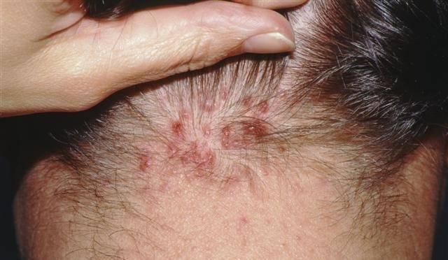 Прыщи на голове в волосах у женщин: причины и лечение