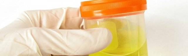 Хлопья в моче у мужчин: причины и лечение