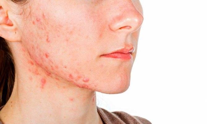 Высыпания на коже: кистозное акне