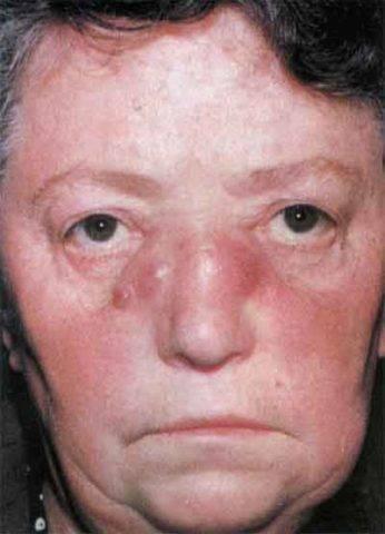 Сифилис – симптомы, причины, фото и лечение сифилиса