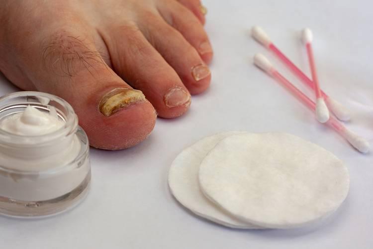 Грибок стопы — симптомы, варианты эффективного лечения, причины появления и развития болезни (105 фото и видео)