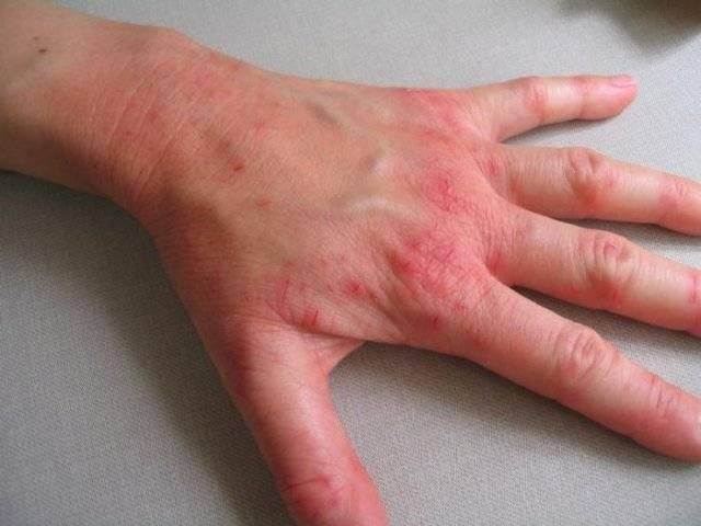 Кожные болезни у человека: фото и описание основных видов кожных заболеваний