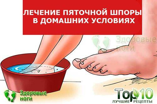 Симптомы и лечение шпоры на пятке в домашних условиях
