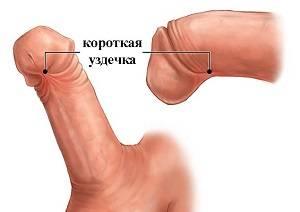 Причины и лечение воспаления крайней плоти у мужчин