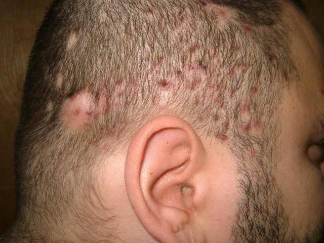 Прыщи на затылке у мужчин: причины появления, симптомы, проведение диагностики и лечение