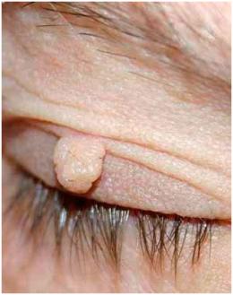 Папиллома в носу— как выглядит и как убрать