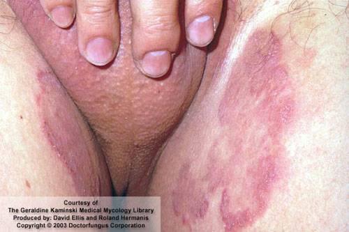 Шишка в паху у мужчин: провоцирующие факторы и методы лечения