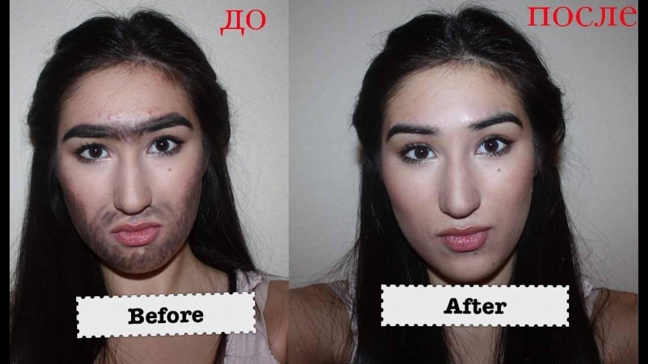 Методы избавления от прыщей в косметологии