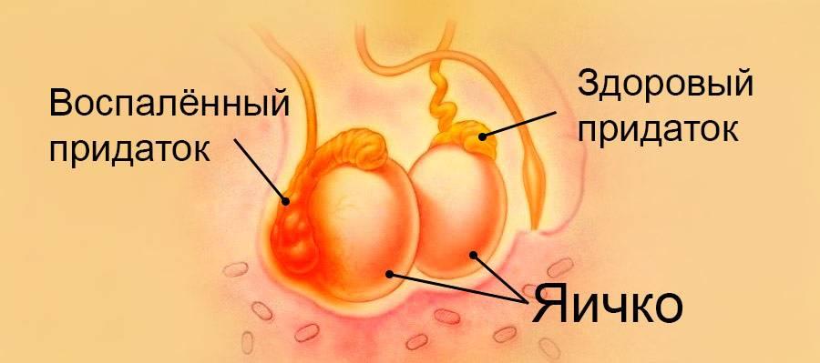 Эпидидимит у мужчин: симптомы и способы лечения воспаления придатков